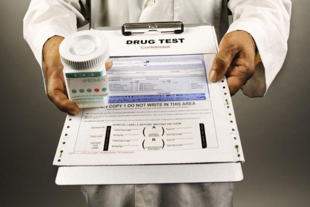 What Is The Most Common Drug Test For Employment?